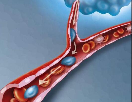 研究揭示了癌症如何在血液中扩散